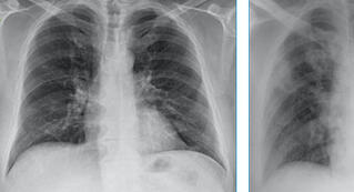 COVID-19 Chest X-Ray